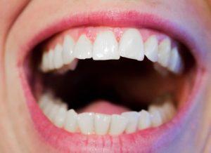 Izbeljivanje zuba, jabukovo sirće, zubi, zubi, zubar, usta, ispiranje, zubna gleđ, mrlje na zubima, osvežava dah