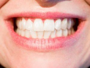 Zubobolja, karanfilić, kokosovo ulje, žalfija, propolis, beli luk, zub, bol u zubima, desni