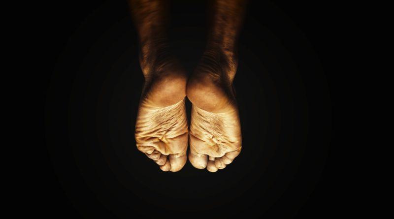 Gljivice na nogama, gljivična infekcija, stopala, nokti, onihomikoza, svinjska mast, beli luk, jabukovo sirće, cimet, recept, krema