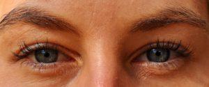 vidac sprečava kratkovidost