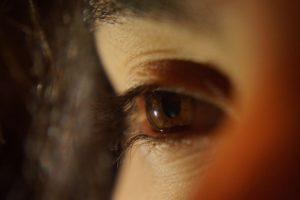 problemi sa očima